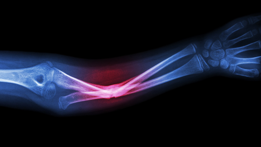 CDY's midkine antibody shown to accelerate bone fracture healing